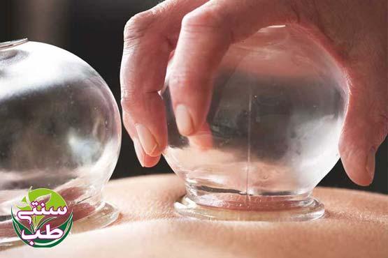 بادکش گرم و خشک و درمان بلغمی ها