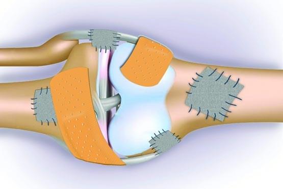 آبگوشت برای مبتلایان به پوکی استخوان و درد مفاصل