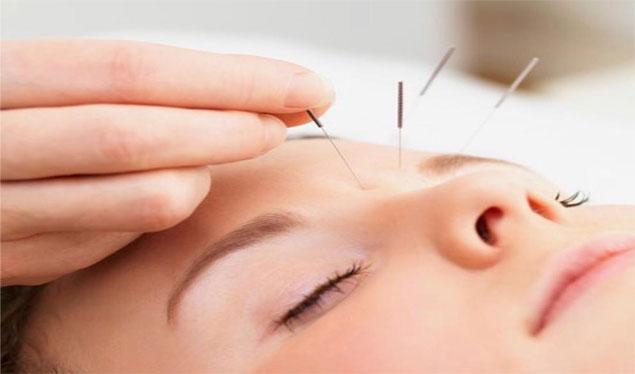 درمان سر دردهای میگرنی با طب سوزنی در گرگان