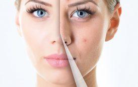درمان جوش های صورت با 12 روش سنتی